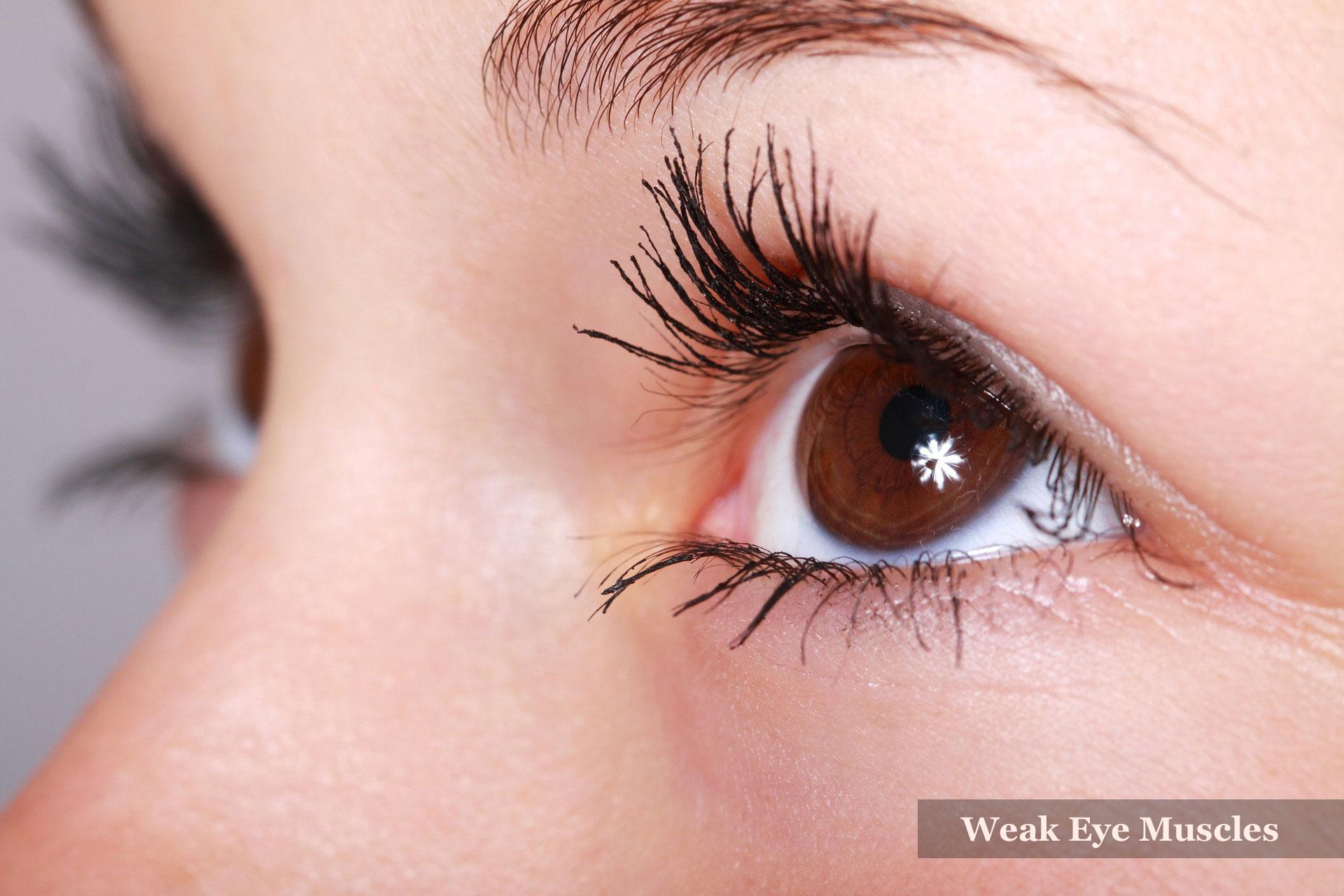 Weak Eye Muscles